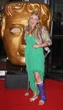 Anna Williamson Photo - London UK   Anna Williamson  (TV presenter) with an injured leg and foot   at the  BAFTA Childrens Awards held at the Hilton Park Lane London   29th November  2009  Keith MayhewLandmark Media